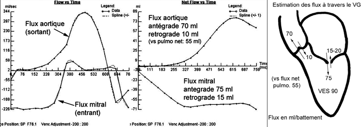 Image:courbes_flux_mitral_733.jpg